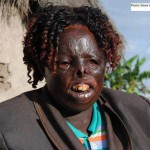 H.E William Ruto Should Stop The Luxury Jet Deal, Help This PEV Victim From His Stronghold!