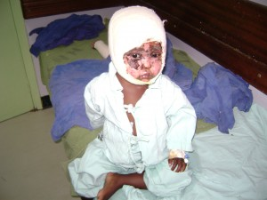 An unidentified burned, bandaged baby one of of Kenya's PEV victims. [photo/jrjf.wordpress.com]
