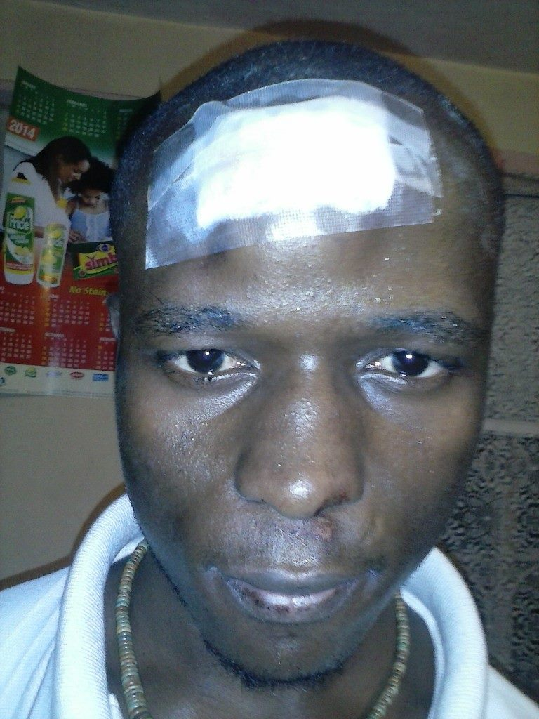 DEMO:  Even with a fractured skull, one comrade swears he will go back to the streets to oppose fee increment